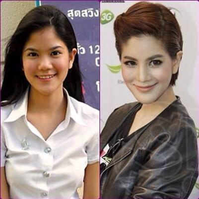Plastic surgery on Thai Celebrities - Got Bangkok | Got Bangkok